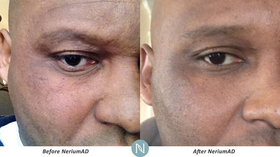 Skin discoloration is not a problem yet it can improve