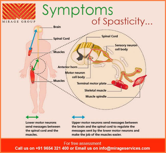 Symptoms Of Spasticity Increased Muscle Tone Overactive Reflexes Involuntary Movements Which May Include S Bone And Joint Skeletal Muscle Muscle Tone