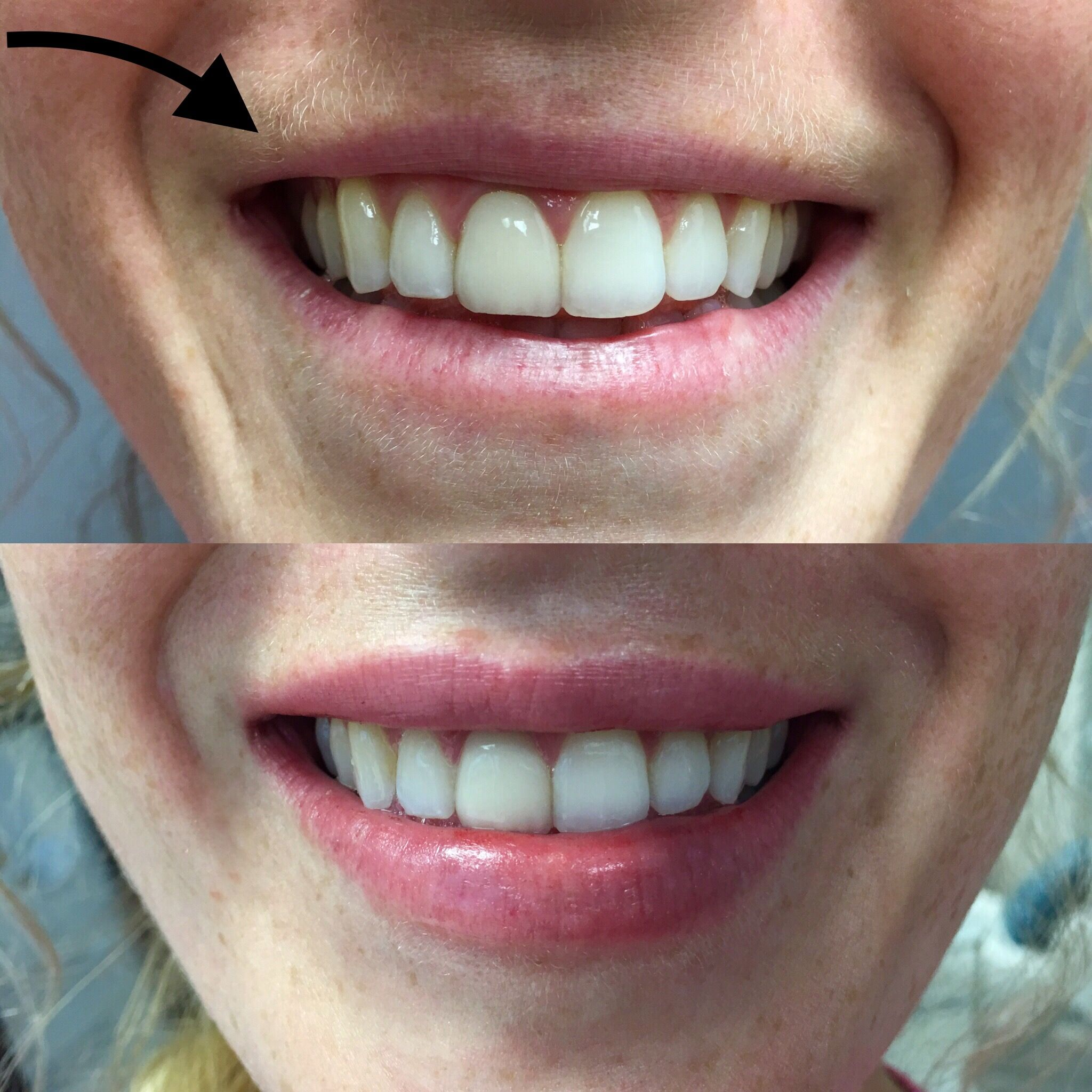 Before and After, Juvederm VOLLURE applied to top and bottom
