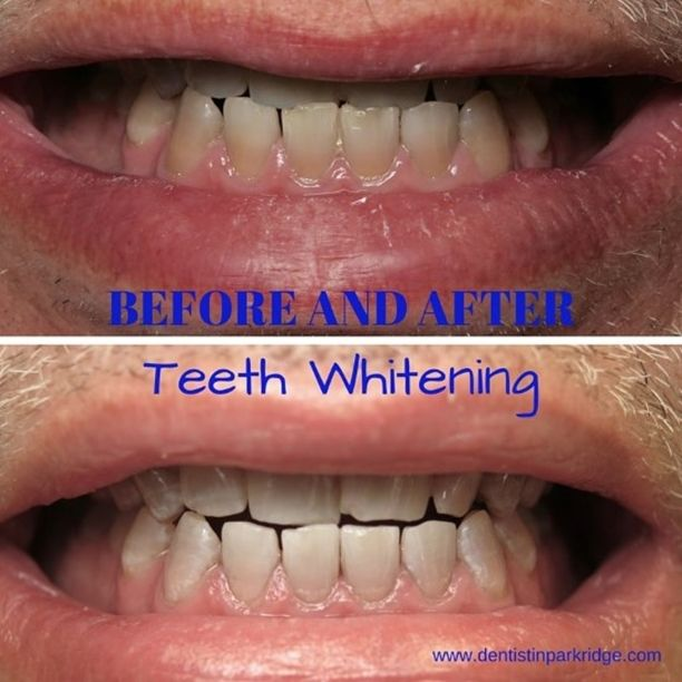 Smile Gallery Before And After Teeth Whitening Whitening Teeth