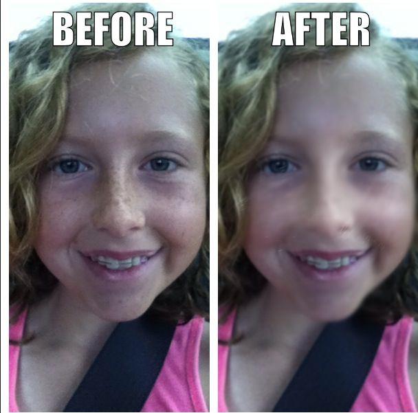 freckle freckles remover remove