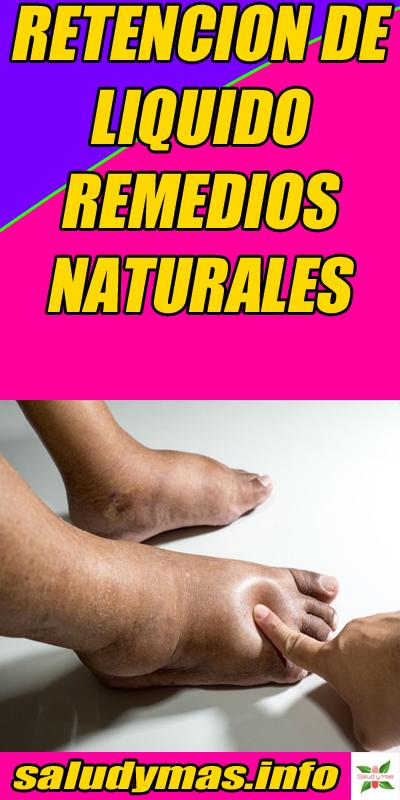 Retencion De Liquido Remedios Naturales Remedios Naturales Remedios Retencion De Liquidos