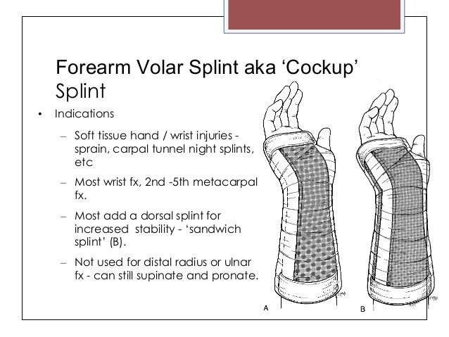 Dynamic Splint 90 Degree Angle Of Pull Google Search Hand And Ue