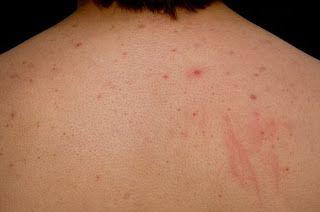 4c0950f48413 Comment enlever l acné dans le dos et le cou naturellement  conseils  intéressants et remèdes maison pour se débarrasser d acné dos et d acné cou  ...