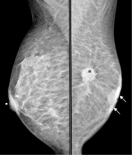 What is carcinoma left breast