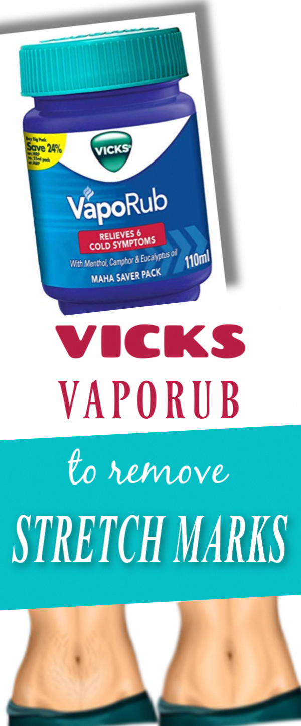 Vicks Vaporub Magical Eraser For Stretch Marks