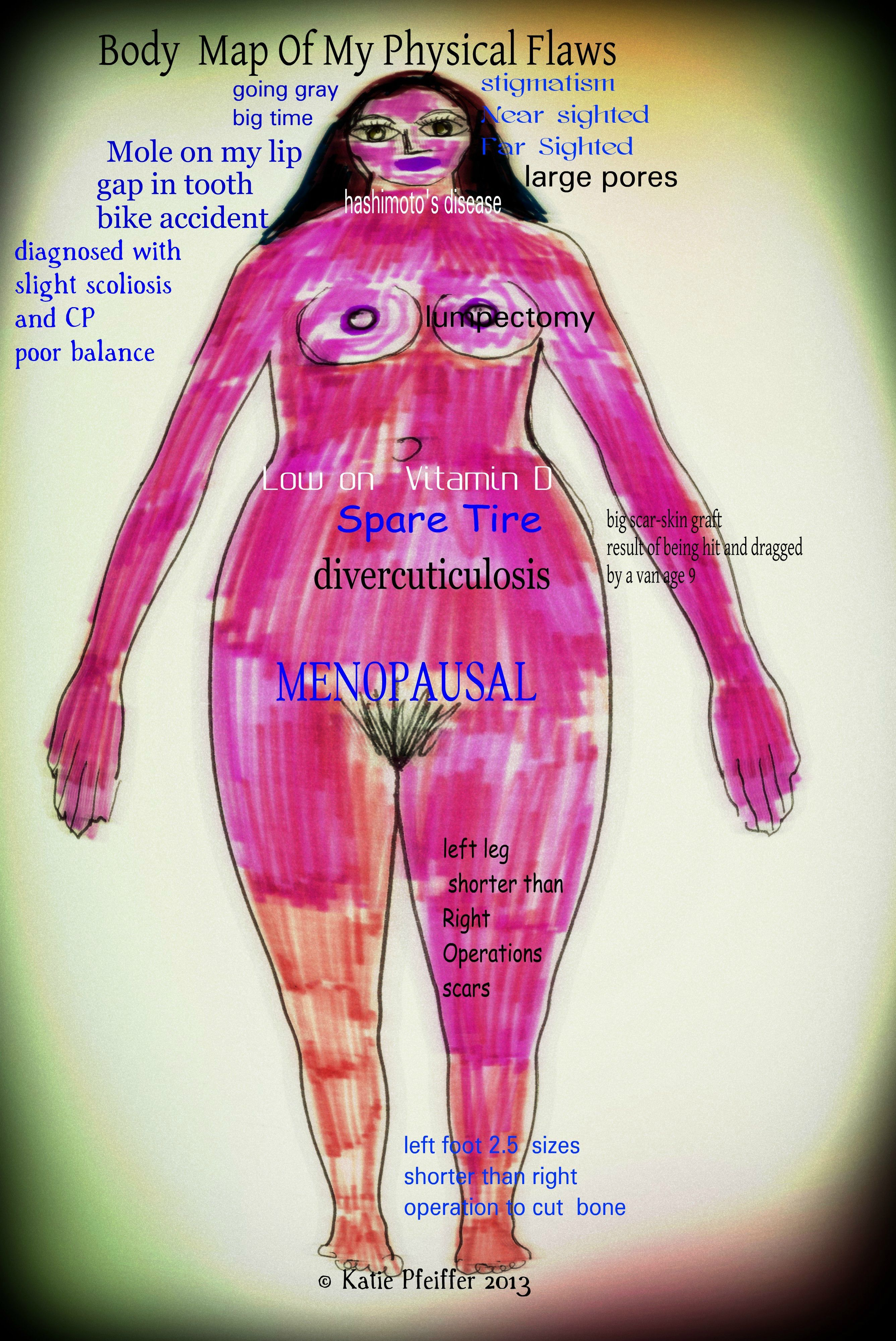 This is  a body map of my physical flaws.