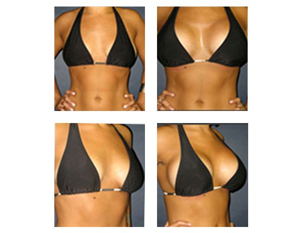 Rapid Recovery Breast Augmentation By Dr Matthew Schulman