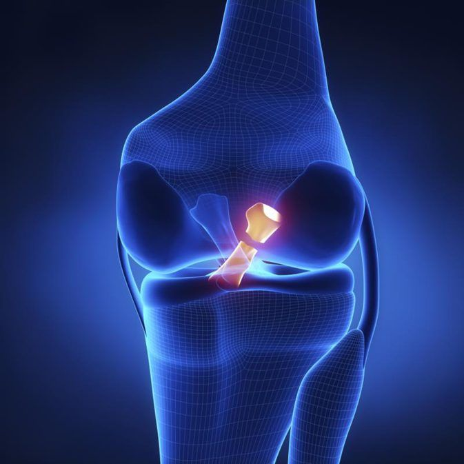 ACL Reconstruction /Surgery   Dr.Siddharth Aggarwal