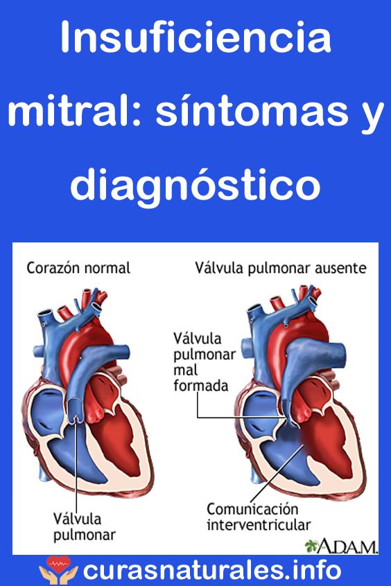 Insuficiencia mitral: síntomas y diagnóstico   Salud ...