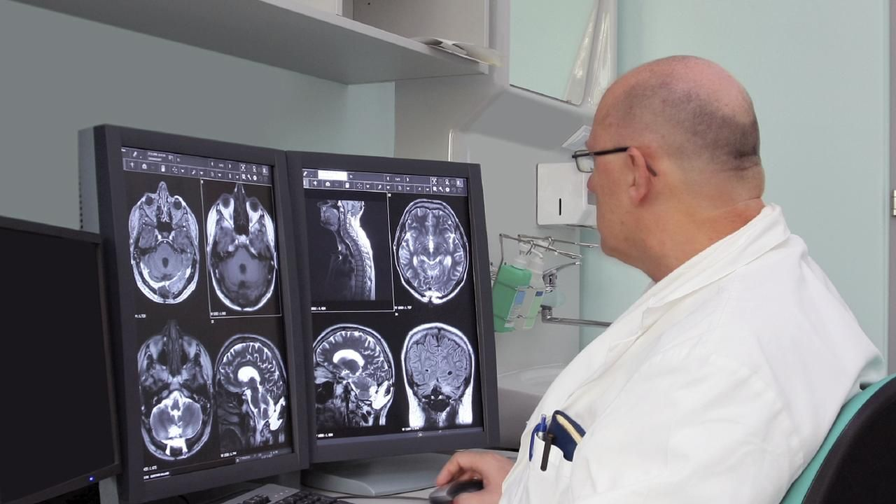 In order to diagnose Multiple Sclerosis in a person, a doctor must perform a complete neurological exam. Multiple Sclerosis Diagnosis and Test is explained in this article.