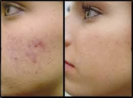 PRP with micro-needling is used to: Reduce appearance of acne scars