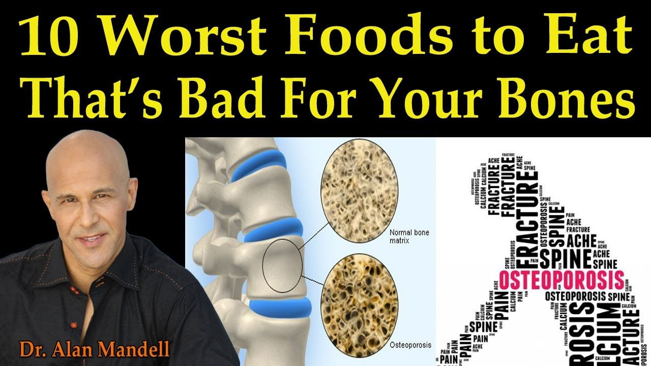 37++ Osteoporosis medication and hair loss information