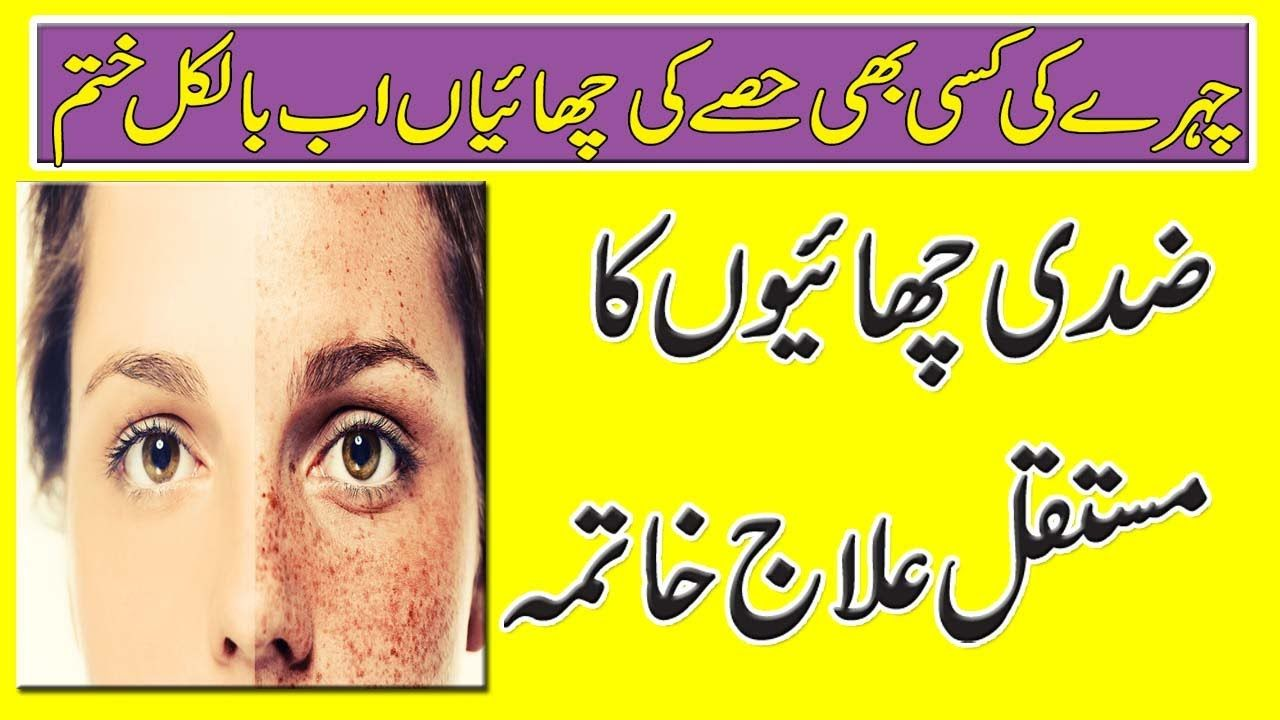 How To Get Rid Of Freckles On Face Permanently  Chaiyon Ka Ilaj