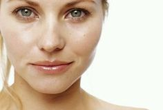 Causes of Spider Veins on the Face | Beauty Secrets