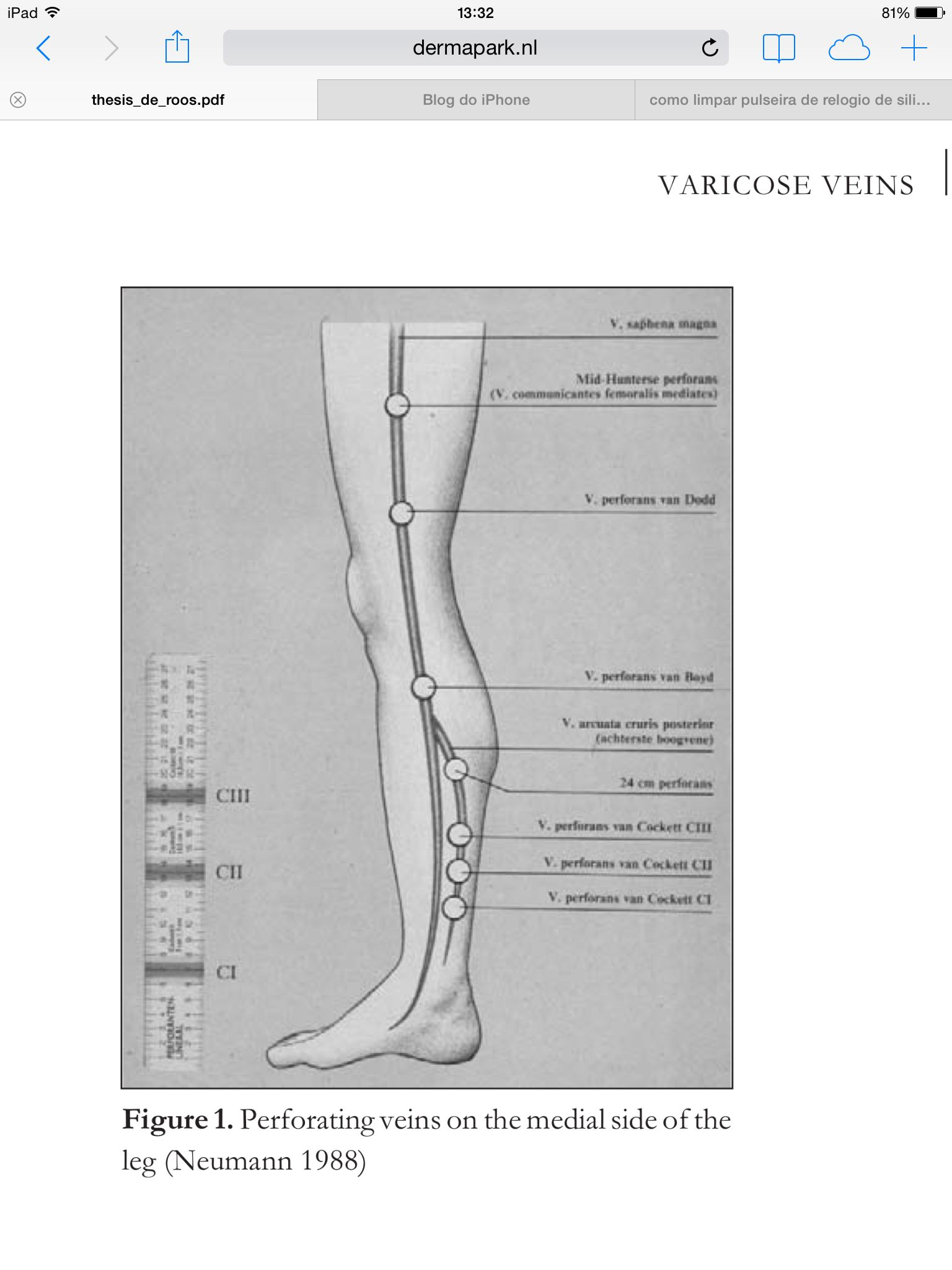 Perforant Veins Lower Extremity