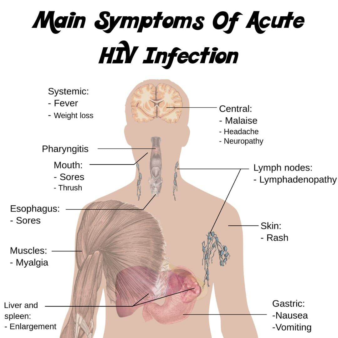 small resolution of hiv symptoms can be different from one person to another person there is no assurance