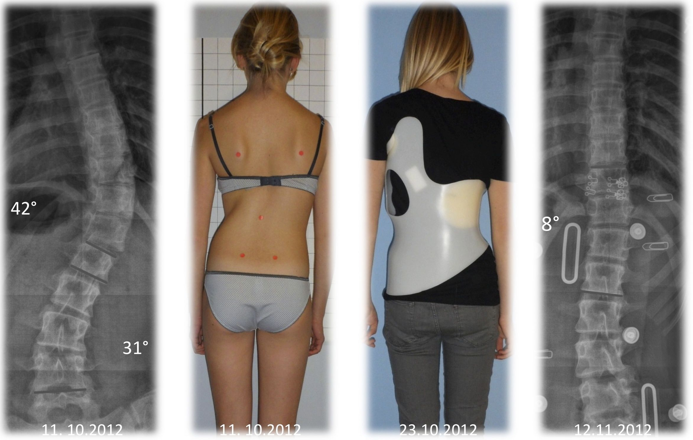 The Gensingen Brace according to Dr. Weiss™ for a functional 3 ...