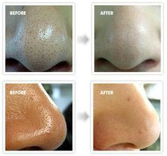 how to get rid of blackheads fast and overnight home. Black Bedroom Furniture Sets. Home Design Ideas