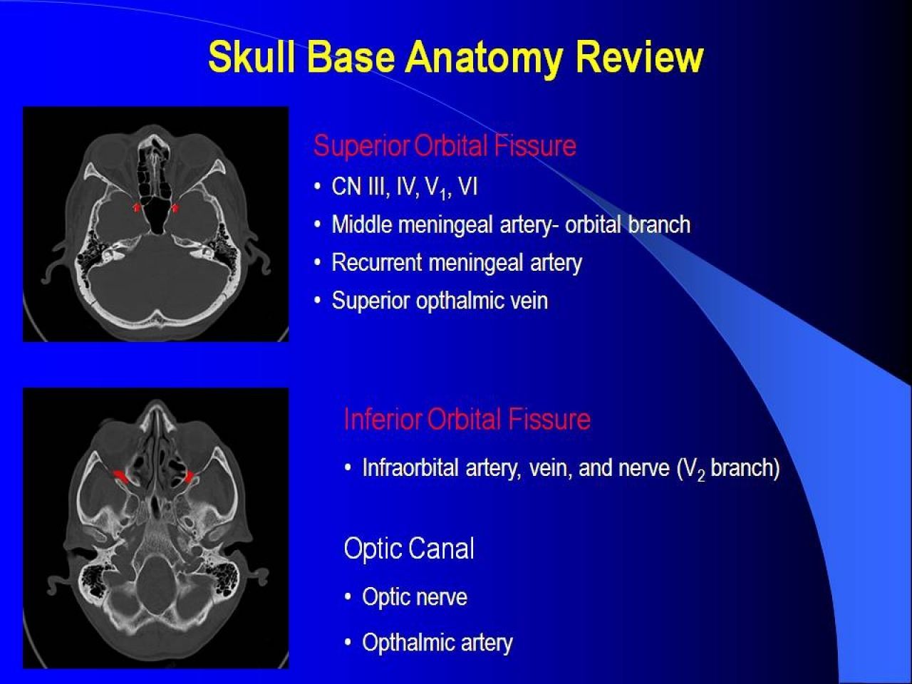 Base Of Skull Mri Google Search Anatomy Pinterest