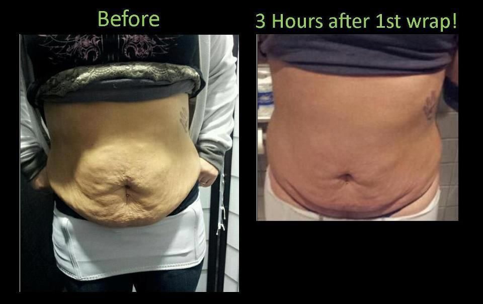 Finally a painless, lasting, affordable way to get rid of ...