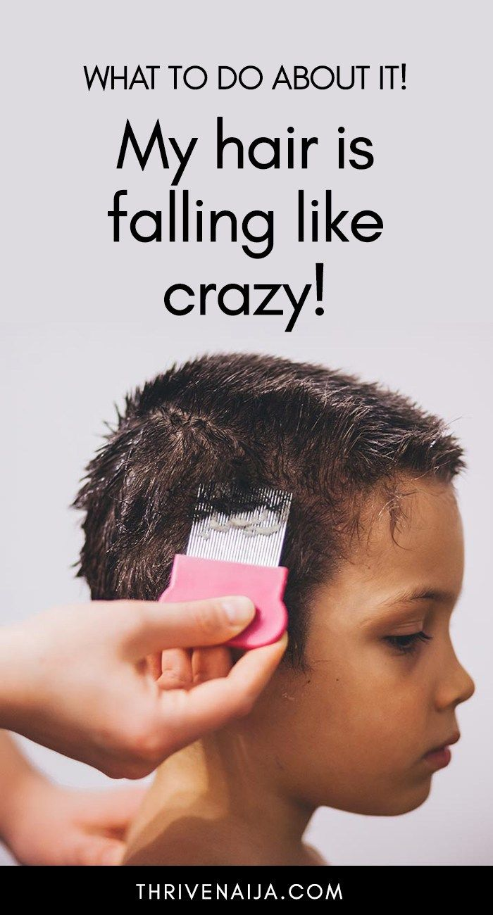 My Hair is Falling Out Like Crazy, What Do I Do? | Why ...