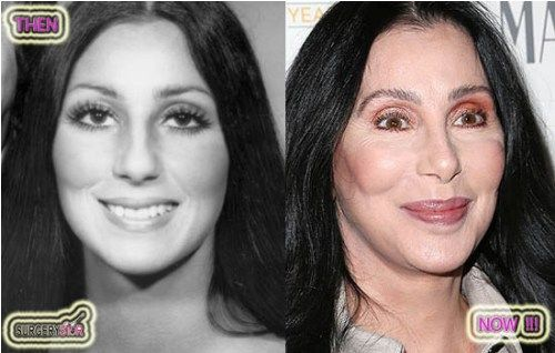 Cher With Bad Plastic Surgery Before After Bad Surgery