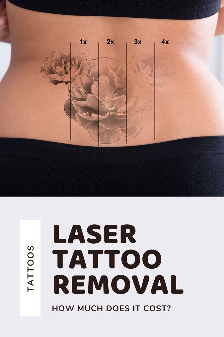 Laser Tattoo Removal Cost - Infinity Laser Spa, NYC ...