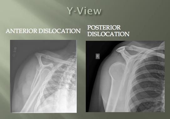 Anterior Vs Posterior Shoulder Dislocation Xr Y View Scapular X Ray Shoulder Dislocation Radiology Imaging Dislocation