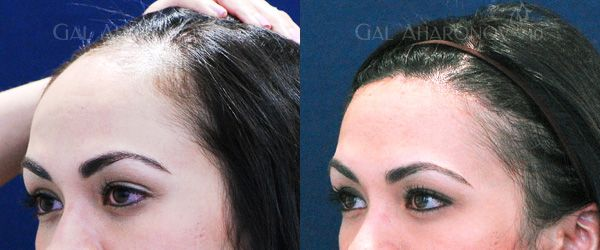 How To Get A Lower Hairline Naturally