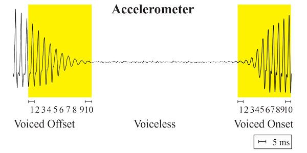 Voice Relative Fundamental Frequency via Neck-Skin Acceleration in Those w/ #Voice Disorders http://