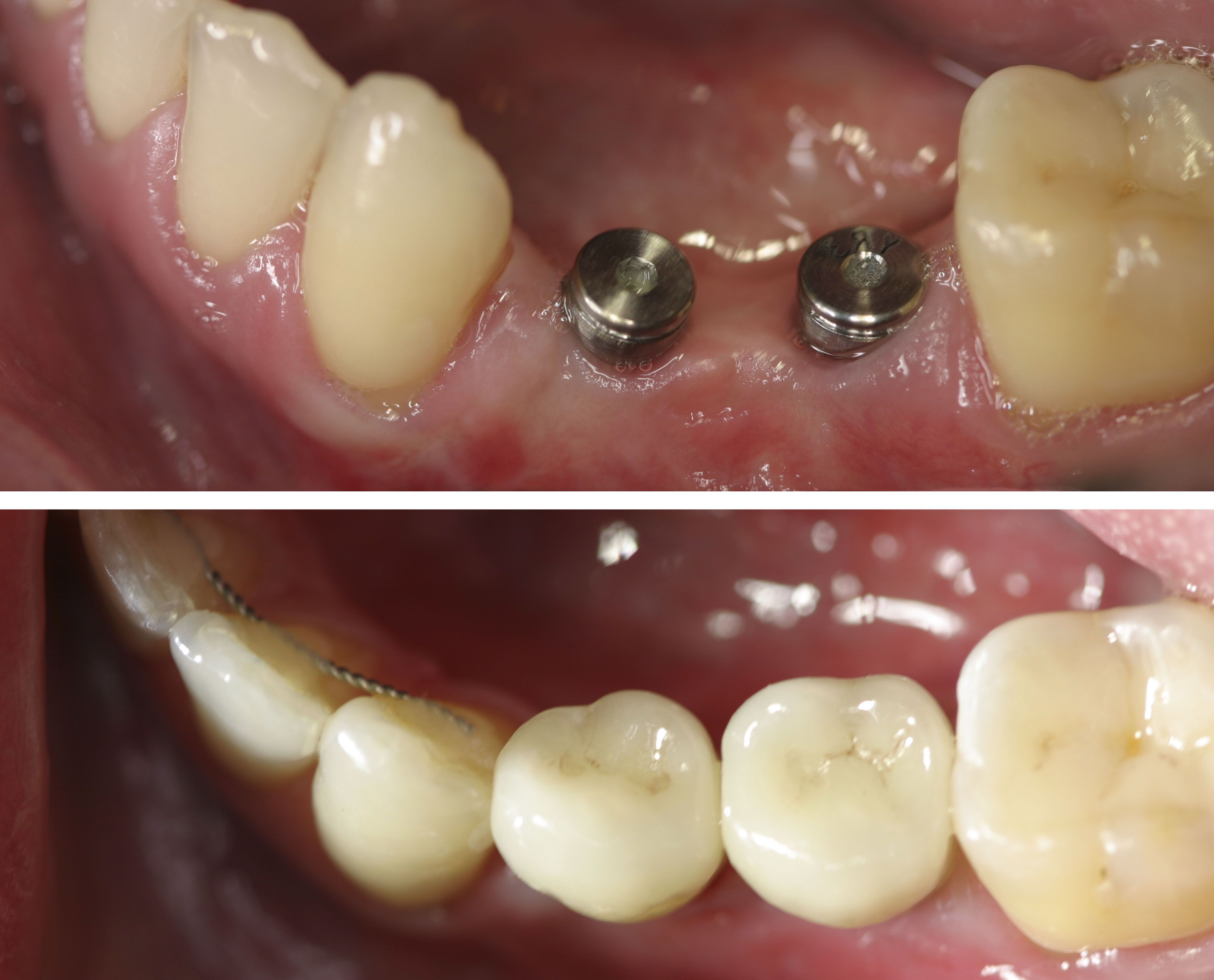 Before And After Patient Had Two Missing Pre Molars Two Dental Implants Were Placed In The Open Spaces Six Months Later T Dental Implants Dental Dentistry