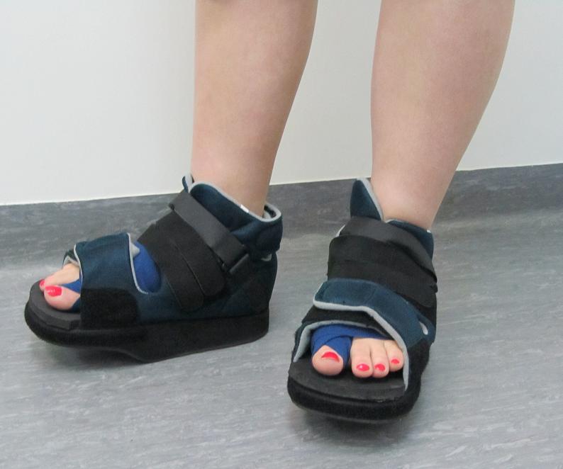 Косточки и шишки на ногах- ортопедический подход | Одежда | Pinterest