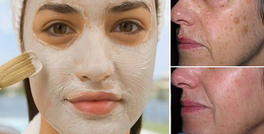 Maschera di bicarbonato e aceto di mele contro macchie e acne   Rimedio Naturale