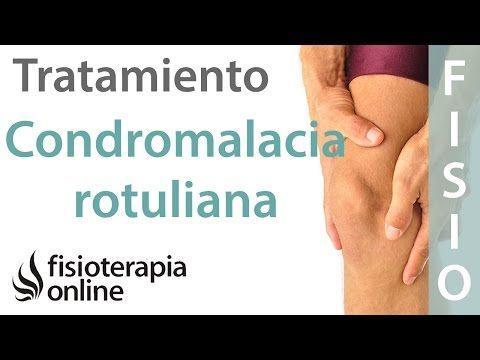 Tratamiento De La Condromalacia Rotuliana Fisioterapia Online Condromalacia Rotuliana Condromalacia Dolor En La Rodilla