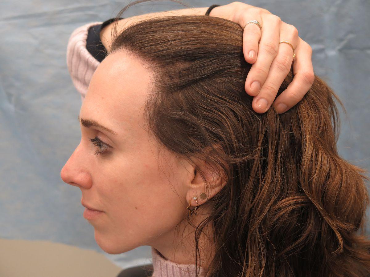Widows Peak Removal Before After Google Search Bad Hairline Widow S Peak Hair Transplant Women