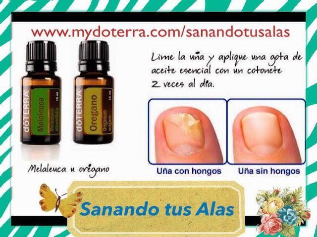 Resultado de imagen para hongos uñas pies doterra | aceites ...