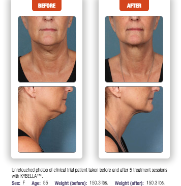 Kybella Double Chin Treatment Laser Skin Care Kybella