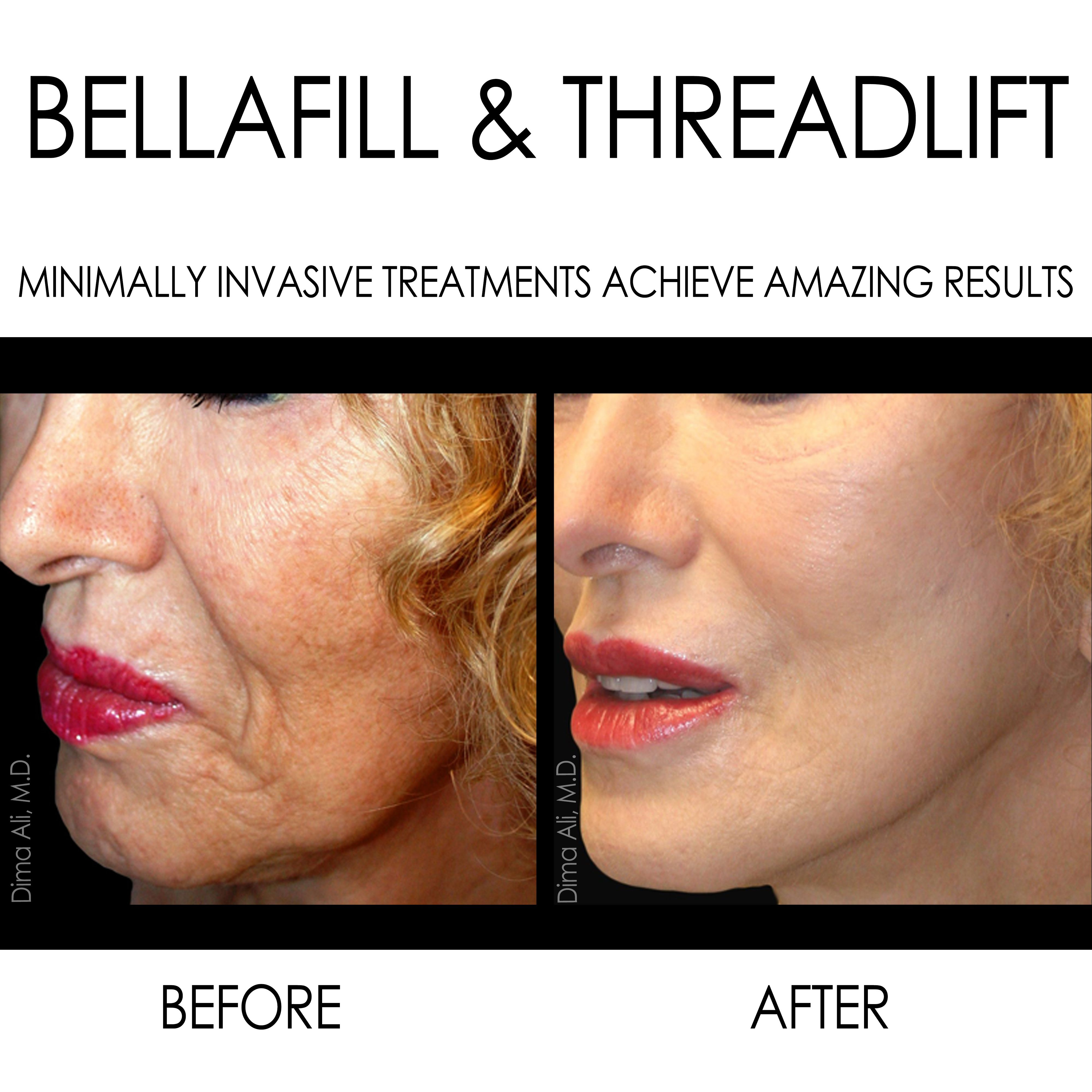 Check Out This Beautiful Beforeandafter It S Amazing How Much Non Invasive Treatments Can D Facelift Without Surgery Face Lift Surgery Facial Plastic Surgery