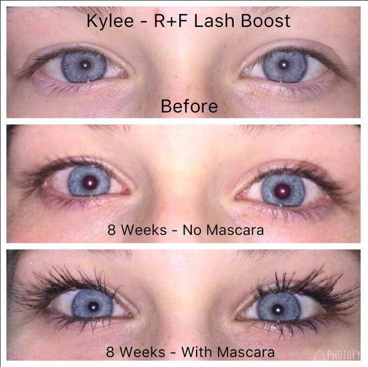 13 Year Old Kylie Lash Boost Rodan And Fields Lashes