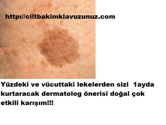 Kahverengi Lekelerden Kurtaran Cok Etkili Formul Dermatolog Onerisi Bu Dogal Karisimla 1 Ayda Lekelerden Kur Homemade Beauty Care Beauty Skin Care Skin Care
