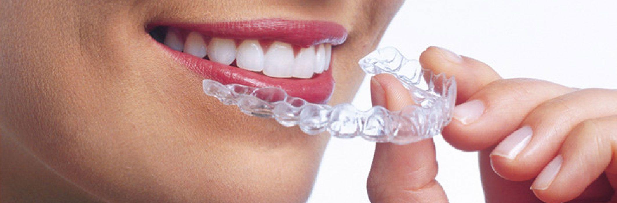 Invisalign Braces Hertfordshire Bow House Dental Tring