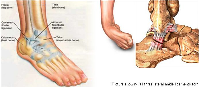 Ankle Ligament Tear Ankle Instability Texas Center For Foot And