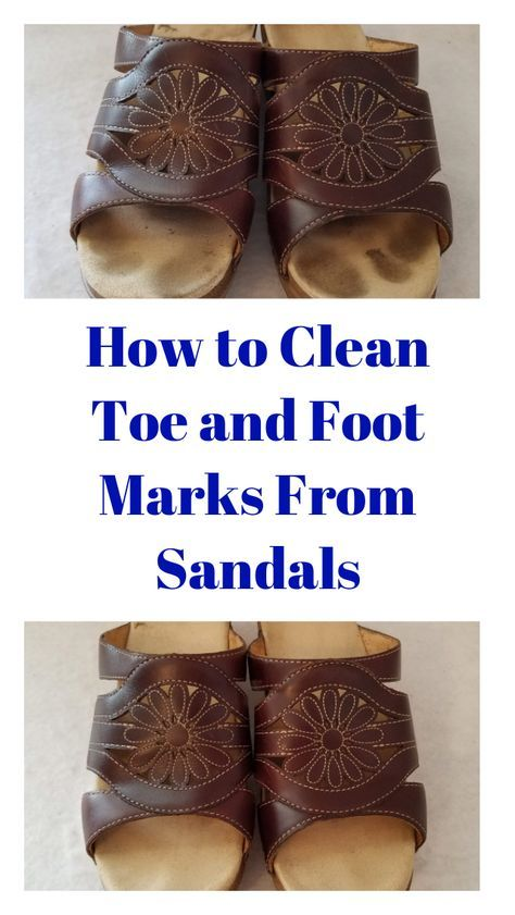 How to Clean Toe and Foot Marks Off Sandals