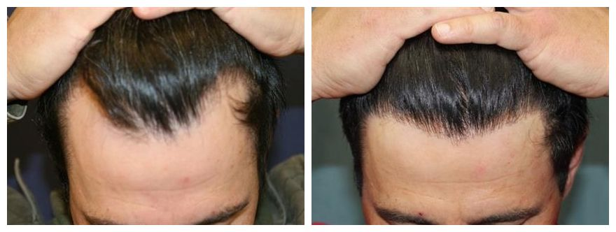 Neograft Is A Minimally Invasive Hair Transplant Technique That Can Achieve A Fuller Thicker Hairlin Hair Restoration Hair Transplant Hair Transplant Surgery