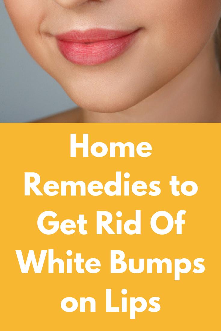 bc39e70ea296dc3a8a90308123b2d275 - How To Get Rid Of Small White Bumps On Lips
