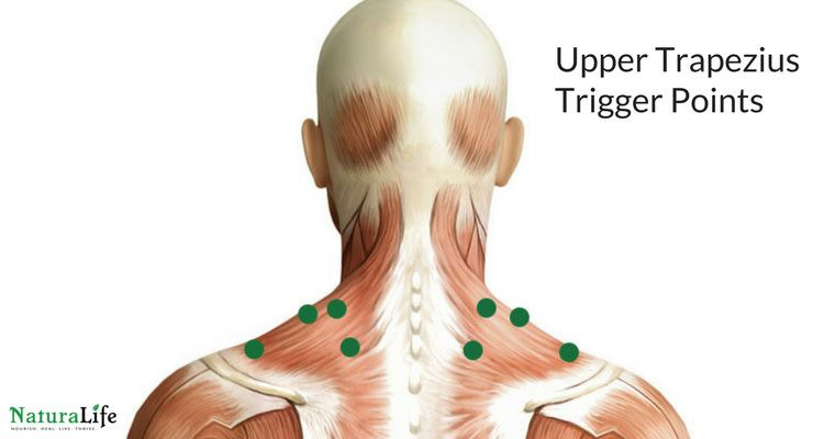 Melt Away Headaches With Trigger Point Therapy | Pinterest | Trigger ...
