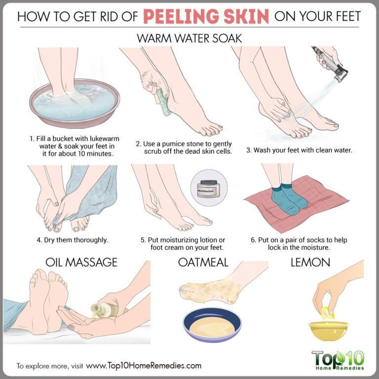 How To Get Rid Of Peeling Skin On Your Feet Top 10 Home Remedies Peeling Skin Skin Care Steps Oily Skin Care
