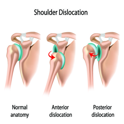 Diagram showing a dislocated shoulder