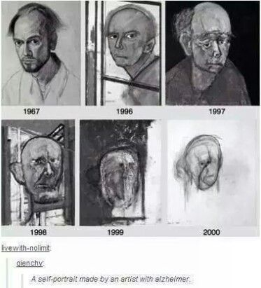 Self portraits by a man with alzheimers over the years